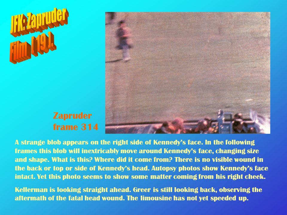 JFK: Zapruder Film [ 19 ]. Zapruder frame 314